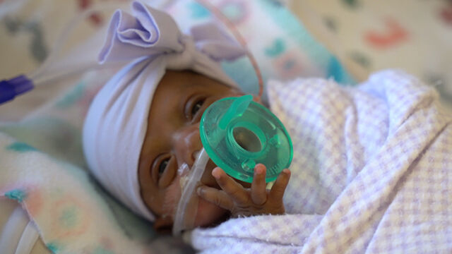 Ważyła tyle co jabłko. W San Diego urodziło się najmniejsze dziecko na świecie. Już jest w domu