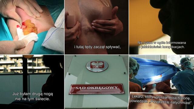 """""""Powiększanie piersi żelem Aquafilling"""". Pierwsza część reportażu """"Superwizjera"""""""