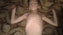 Setki dzieci z Madai są niedożywione i wychudzone