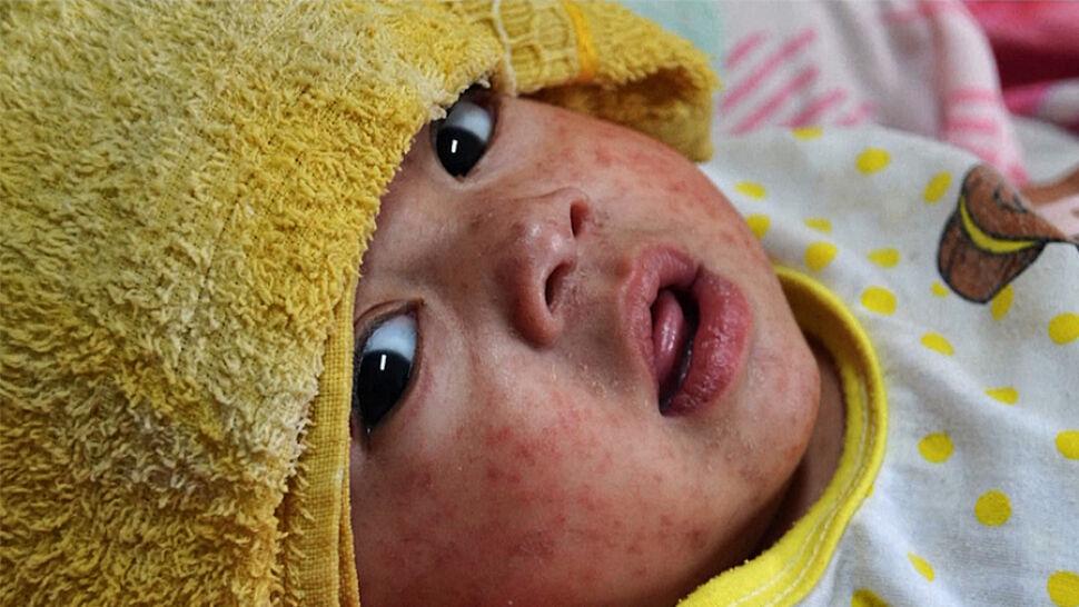 15-krotny wzrost zachorowań w dwa lata. Alarmujący raport WHO