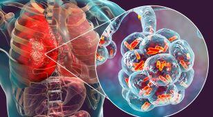 Mutacja bakterii uodparnia je na antybiotyki.