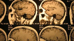 """Zbadano kilka tysięcy mózgów by dowiedzieć się, jakie białko rozpoczyna """"chorobowy łańcuch zdarzeń"""""""
